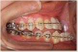 開咬をともなう骨格性下顎前突症 手術直前 右側