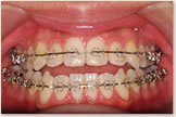 開咬をともなう骨格性下顎前突症 手術直前 正面