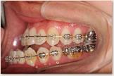 開咬をともなう骨格性下顎前突症 手術直前 左側