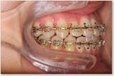 開咬をともなう骨格性下顎前突症 退院後 右側