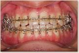 開咬をともなう骨格性下顎前突症 退院後 正面