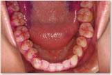 下顎歯列の歯の磨き残し(PCR)比較 治療開始時