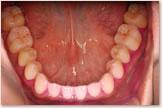 下顎歯列の歯の磨き残し(PCR)比較 治療終了時