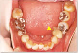 上突歯列・上突咬合・叢生歯列・下後退顎 治療前 下顎