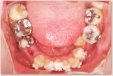 上突歯列・上突咬合・叢生歯列・下後退顎 開始後 下顎