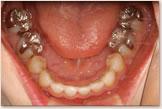 治療後 下顎