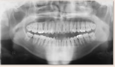 第3大臼歯(親知らず)が存在し萌出