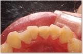 初期治療開始時 下顎