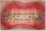 術前矯正治療終了時(動的治療開始から25ヵ月後) 正面
