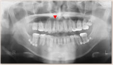 ▼は失活歯を示す