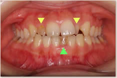 ▼矮小化した上顎左右側切歯(左右上2番)  ▲ 晩期残存した下顎左側乳中切歯(左下A)
