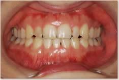 動的治療後の正面口腔内