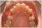 動的治療開始時 上顎