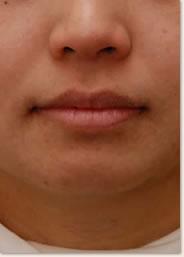 動的治療後 顔貌