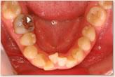 初期治療後 下顎