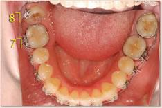 右下8番に装置を装着可能となり、歯の移動を開始