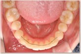 動的治療後 下顎