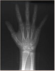 手根骨のX線写真
