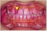 歯周組織検査 正面