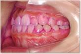 歯周組織検査 左側