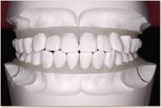 非抜歯矯正治療の予測模型(白):正面