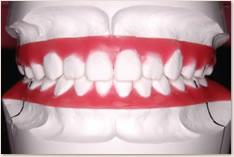 抜歯矯正治療の予測模型(赤):正面