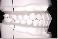 非抜歯矯正治療の予測模型(白):右側