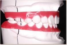 抜歯矯正治療の予測模型(赤):右側
