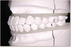 非抜歯矯正治療の予測模型(白):左側