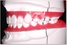抜歯矯正治療の予測模型(赤):左側