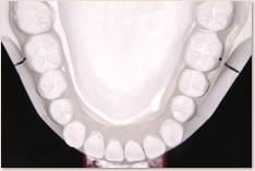 非抜歯矯正治療の予測模型(白):下顎