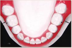 抜歯矯正治療の予測模型(赤):下顎