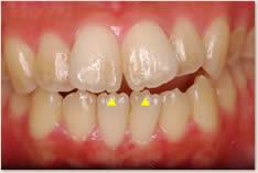 ▲下顎切歯切縁部に切縁結節を認める