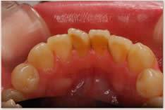 歯の裏側(舌側)に歯石や歯の磨き残しを認める