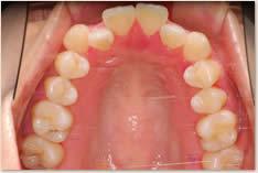 初期治療後:上顎