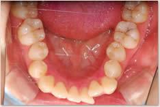 初期治療後:下顎