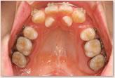 ・再評価時(動的治療開始から7ヵ月後) 上顎
