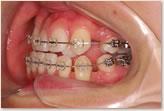 再評価時(動的治療開始から7ヵ月後) 左側