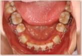 再評価時(動的治療開始から7ヵ月後) 下顎