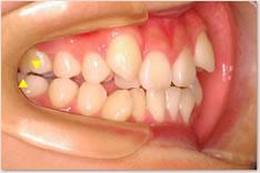 初診時:上顎の第1大臼歯近心頬側咬頭(▼)が下顎第1大臼歯頬面溝(▲)に対して近心(前方)に位置するAngle class IIを呈している