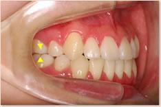 動的治療終了時:上顎の第1大臼歯近心頬側咬頭(▼)と下顎第1大臼歯頬面溝(▲)が一致するAngle class I(理想的な臼歯の位置関係)を呈している