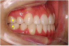 保定完了時:動的治療終了時と同様に上顎の第1大臼歯近心頬側咬頭(▼)と下顎第1大臼歯頬面溝(▲)が一致するAngle class I(理想的な臼歯の位置関係)を維持している