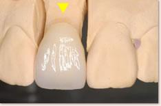上顎右側1番のセラミック補綴物(制作時)