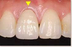 上顎右側1番のセラミック補綴物(口腔内装着時)