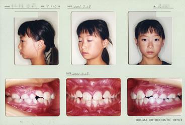 2001年7歳10ヵ月 初診時の顔貌および口腔内写真