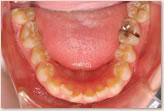2008年14歳8ヵ月 動的治療開始時 下顎
