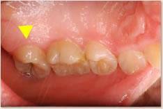上顎左側第2大臼歯