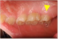 上顎右側第2大臼歯