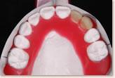 矯正治療後を予測した予測模型 上顎