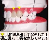 ▼は開窓牽引して配列した上顎左側2、3番を表しています